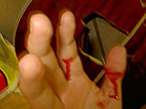 That's What You Get For Punching a Guitar !